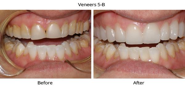 veneers_5b