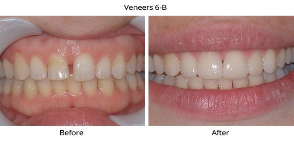 veneers_6B