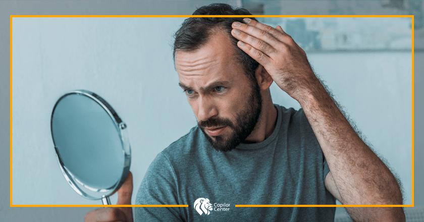 Alopecia masculina androgenética