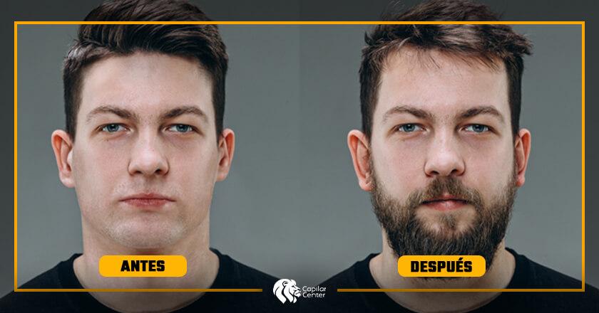 ¿Implante de Barba la Solución Definitiva?