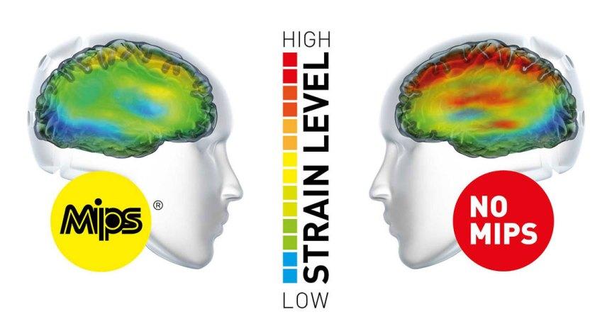 mips-brain