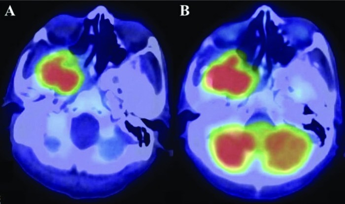 positron-emission-tomography-scan-prior-to-surgery-showing-a-high-accumulation-of-a