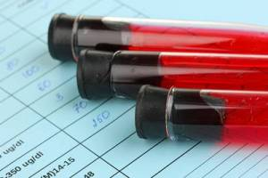 m_bigstock-Blood-in-test-tubes-and-result-43109644