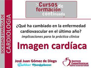 Novedades en Imagen Cardiaca en 2013