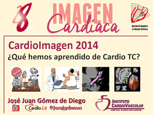 Actualización en Cardio TC 2014