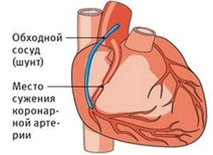 Послеоперационный период после шунтирования сосудов сердца