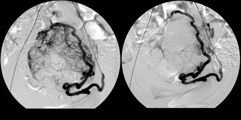 После эмболизации маточных артерий обильные месячные 34