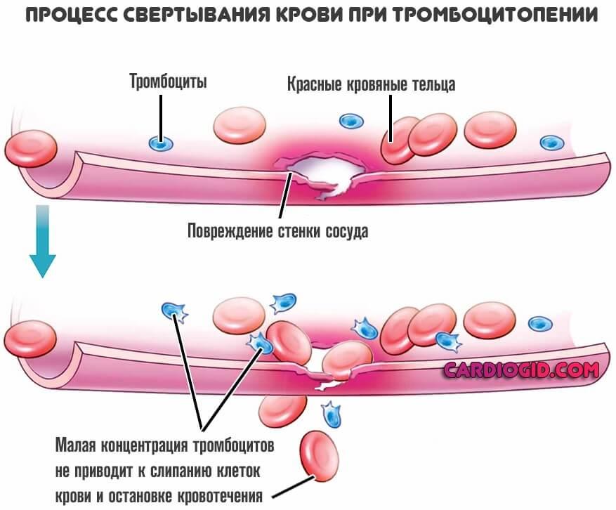혈소판 감소증