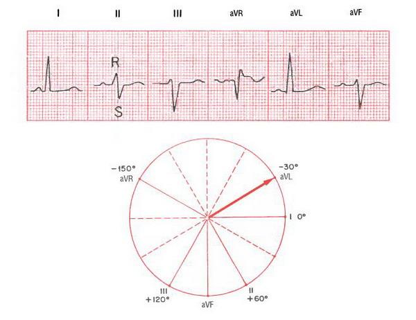 Горизонтальная эос сердца