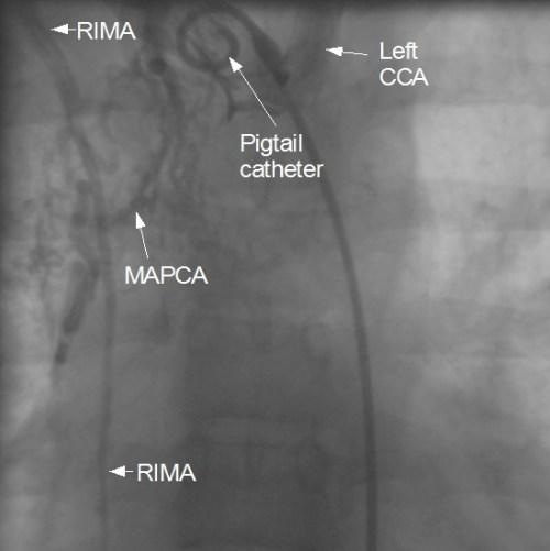 Major aorto pulmonary collateral from RIMA 2