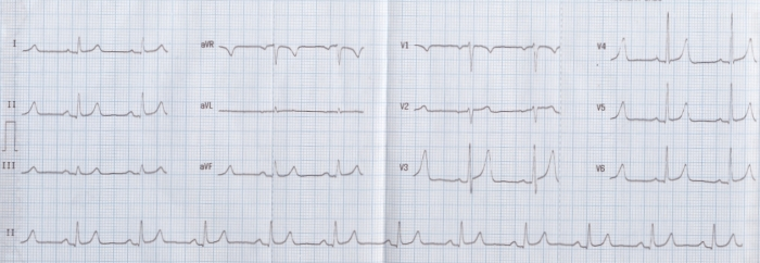 Normal variant ECG with tall T waves  sc 1 st  Cardiophile MD & ECG Quiz 16