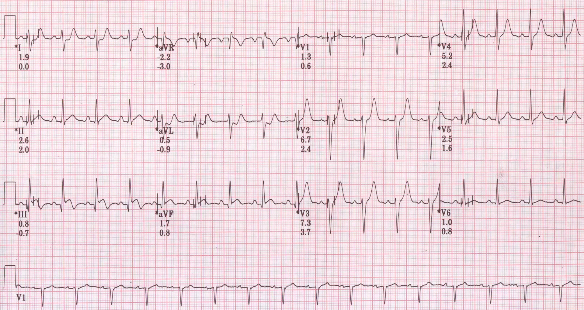 Ont Elevation Images : St elevation during treadmill test cardiophile md