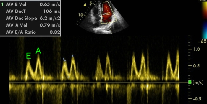 Tissue doppler echocardiography showing measurement of for Ea definition
