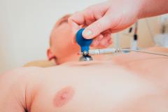 Los cables o electrodos del ECG se colocan en la piel del pecho, brazos y piernas del paciente.