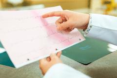 trazado electrocardiografico