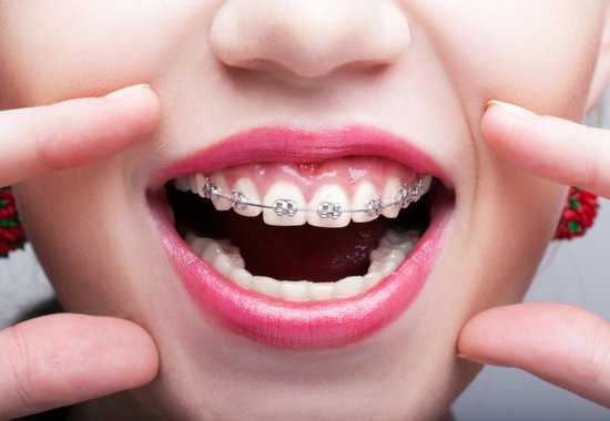 Amazing Facts About Zirconia Crowns Vs. Porcelain Fused To ...