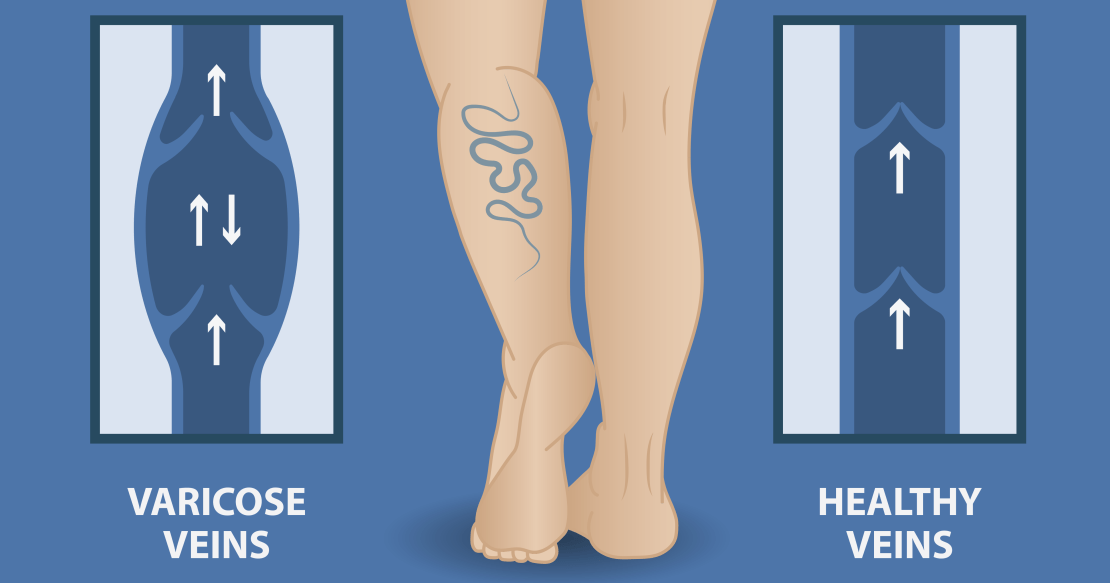 , Varicose Veins: All You Need To Know, Care24