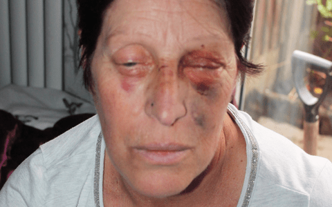 Woman with dementia battered by thug at roadside cafe on Yorkshire coast 1