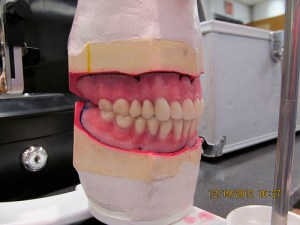 new dentures from Care Denture Clinic Cornwall