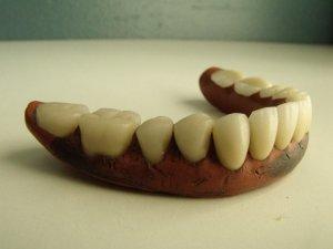 Vulcanite denture