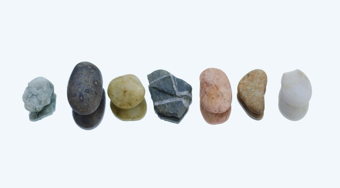 How Long Does It Take to Pass a Kidney Stone, When is Stone Removal Necessary, Symptoms of Kidney Stone