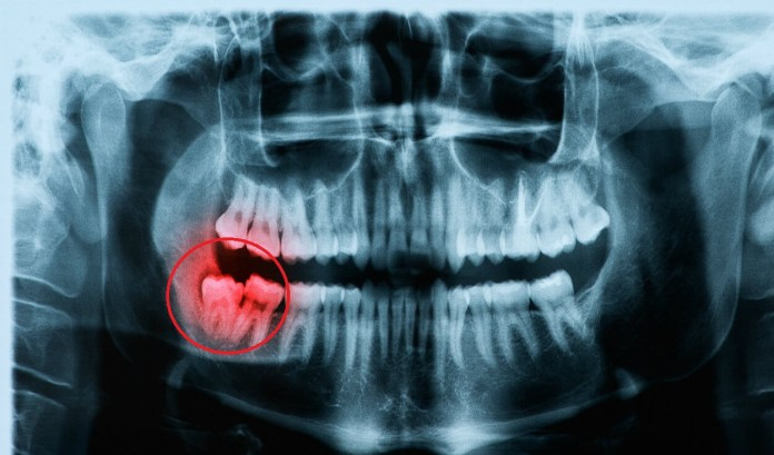 what to eat after wisdom teeth removal, Foods to Take After Wisdom Teeth Removal, Symptons