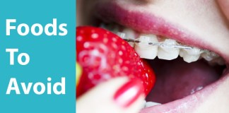 foods to avoid after having braces, what food to eat after braces