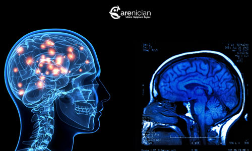 effects of amphetamine on brain