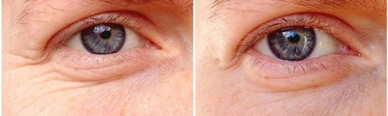 nrm_1412950515-ozone-gel-eye-wrinkles-before-and-after_hp