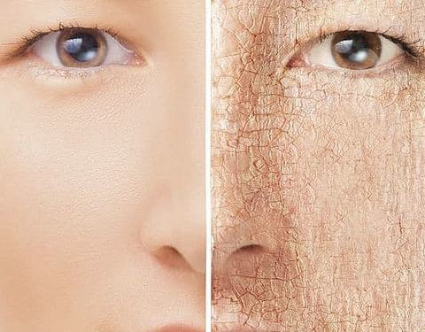 This 7 reasons your skin could be dry in hindi