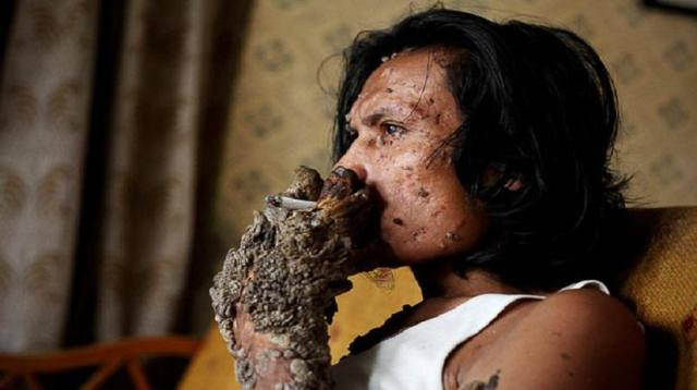 "Indonesian ""Tree Man"" Dies At Age 42"
