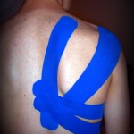 vendaje neuromuscular taping tape