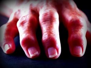 Mano artritis reumatoide manos reumáticas ejercicios osteon