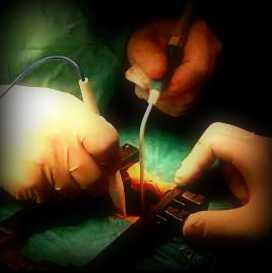 En estenosis lumbar, la fisioterapia tan indicada como la cirugía
