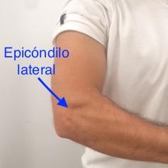 epicondilalgia lateral osteon epicondilitis