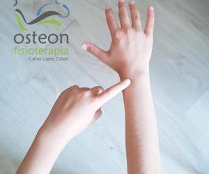 Síndrome de intersección osteon fisioterapia Alaquas