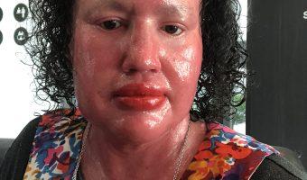 Ichthyosis advocacy fatigue
