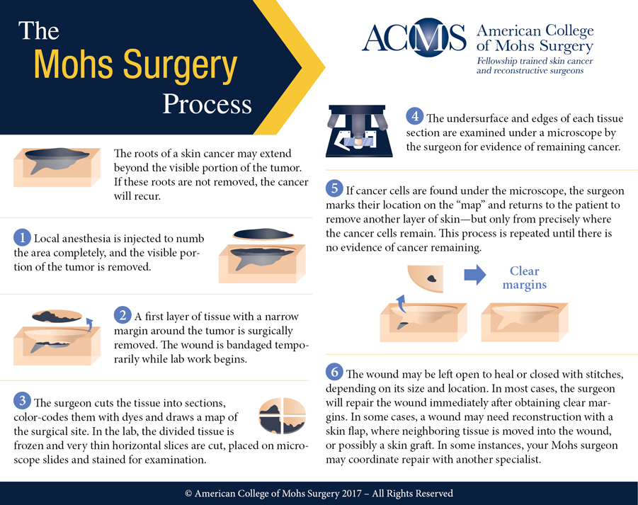 Mohs surgery process image