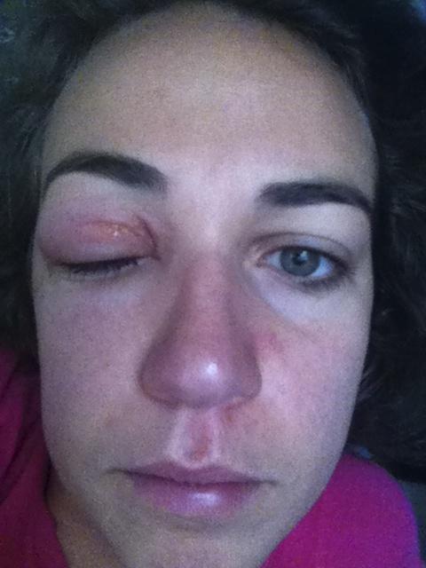 Treat Eye Allergies Naturally
