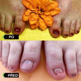 Pedikura a modeláž nehtů před a po