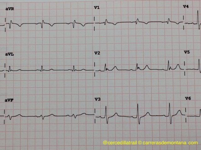 electrocardiograma salud