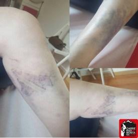 kinesio taping lesiones del corredor paula bueno (4) (Copy)