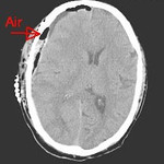 Acute subdural hematoma post op