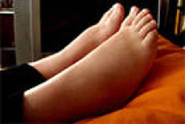O angioedema hereditário afeta aproximadamente uma em cada grupo de 50 mil pessoas, de acordo com a Associação Brasileira de Alergia e Imunologia. A doença é causada por uma alteração no gene que produz uma proteína chamada inibidor de C1-esterase. Esta mutação causa inchaços nas extremidades do corpo, rosto, órgãos genitais, mucosas intestinais e laringe. De acordo com a médica Dafne Horovitz, o principal problema é quando acontece o inchaço de mucosas, isso pode impedir a respiração e levar o paciente à morte