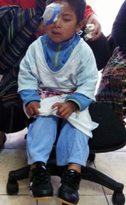 Eliso, age 4. 2nd surgery for congenital cataracts (right eye); 1st surgery by CMT in June, 2013 (left eye)
