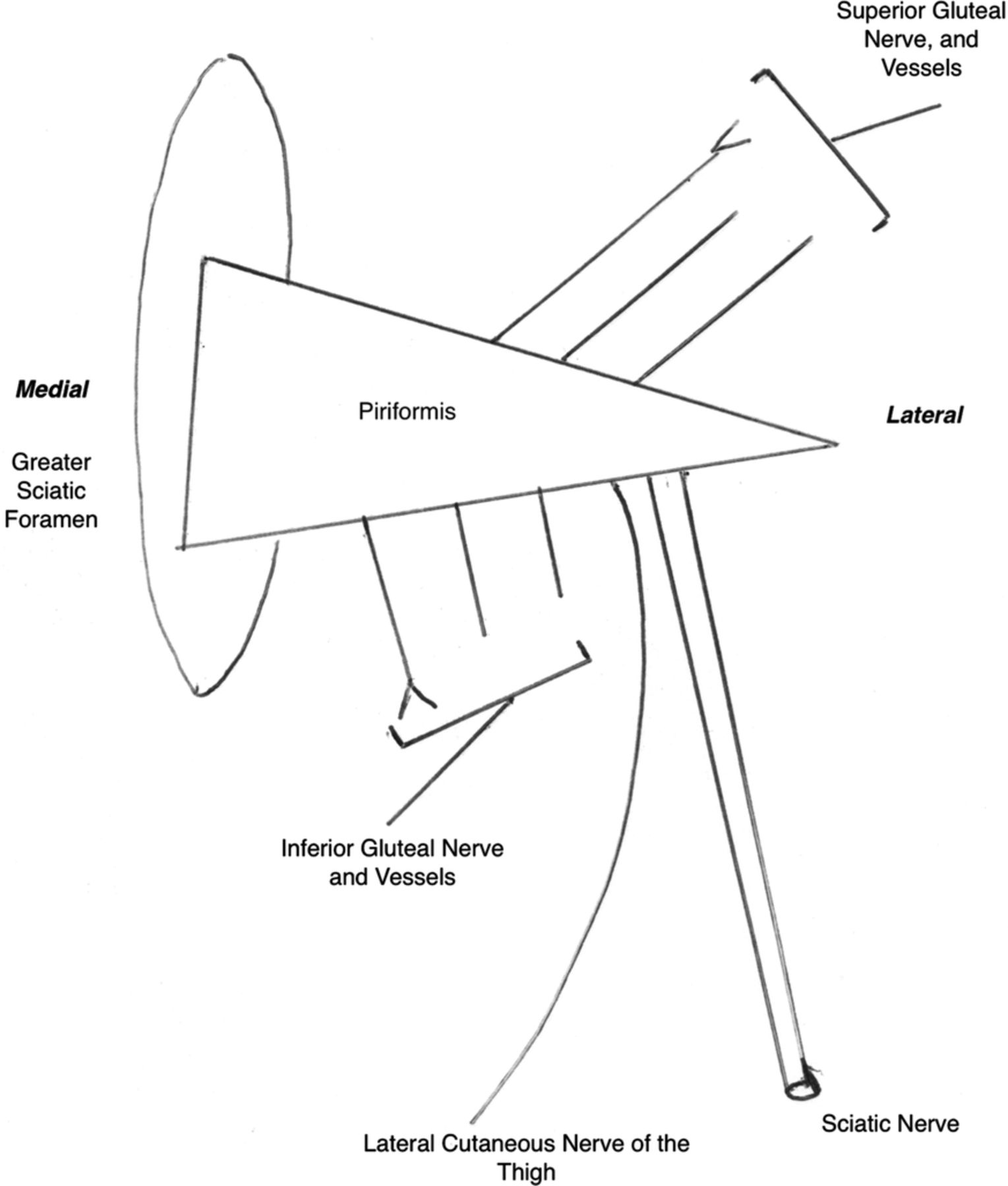 Acute Gluteal Compartment Syndrome Superior Gluteal