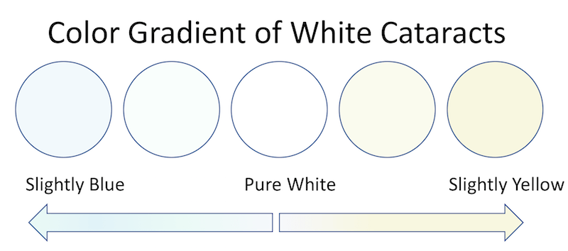 color gradient of white cataracts