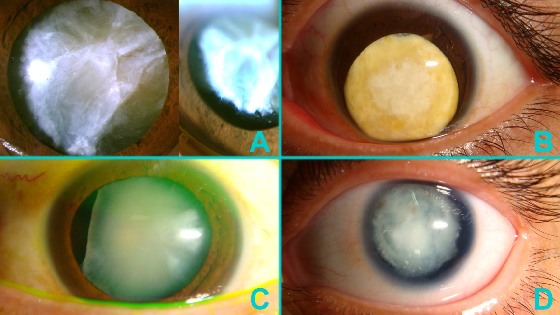 white cataracts - unusual