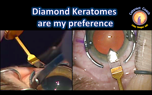diamond keratomes1