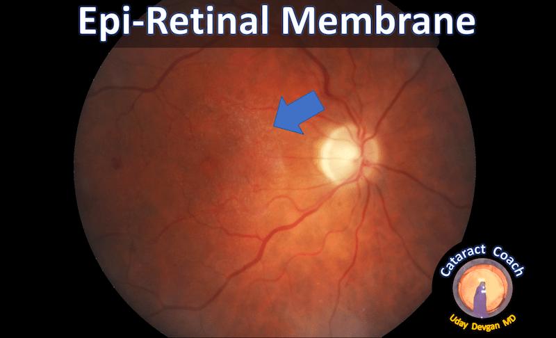 epi-retinal membrane